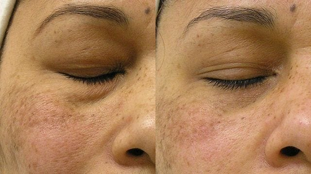 Dull Tired Skin Treatment
