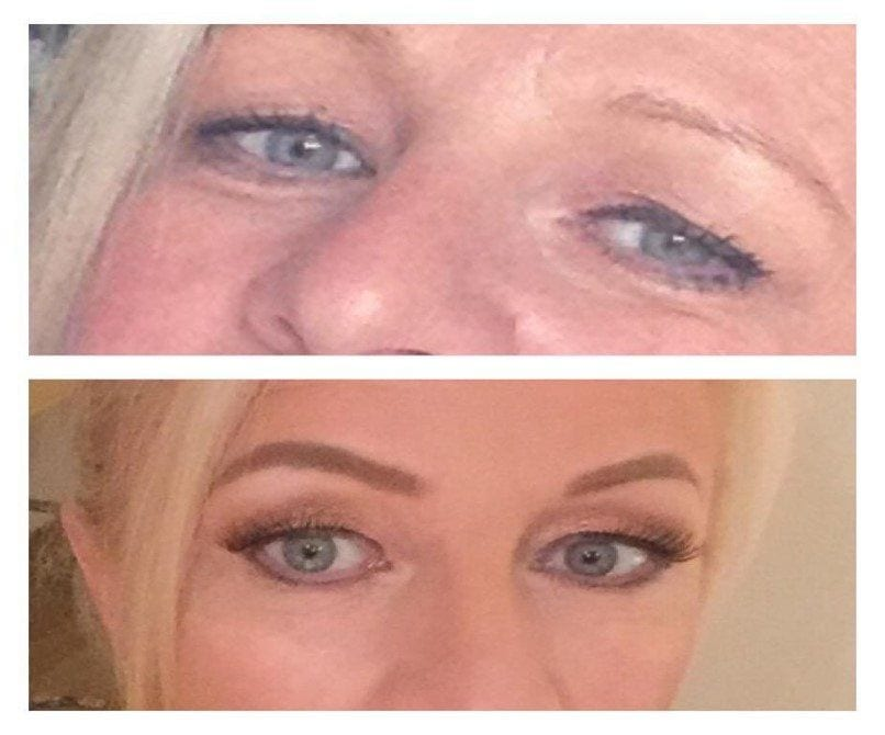 Sublimation Eyelid Lift